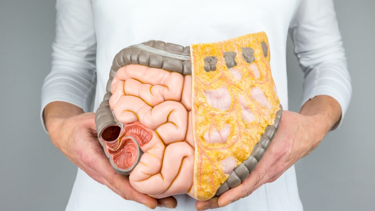 https://www.livehealthymag.com/wp-content/uploads/2021/03/colon-cancer-1280x720.jpg